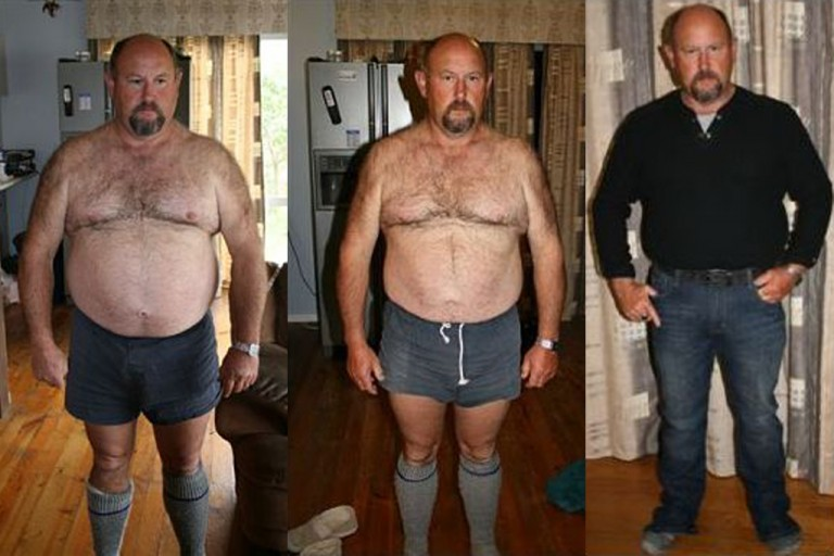 Phil Before and After Pure hCG Protocol - Pure hCG